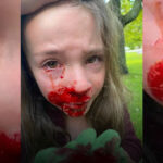 Little Girl Swabbed at School Bleeds From Eye and Nose